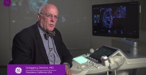 Voluson benefits of e4D imaging & Fetal Heart Education video featuring Dr. DeVore