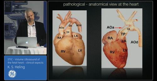 Advanced VISUS: STIC Volume Ultrasound of the fetal heart- Dr. Heling