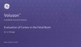 2019 ISUOG - Evaluation of Cortex in the Fetal Brain (Dr. Malinger)