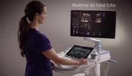 2017 Voluson Expert Realtime 4D Fetal Echo education video