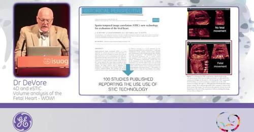 ISUOG 2015 - Dr. DeVore: 4D & eSTIC