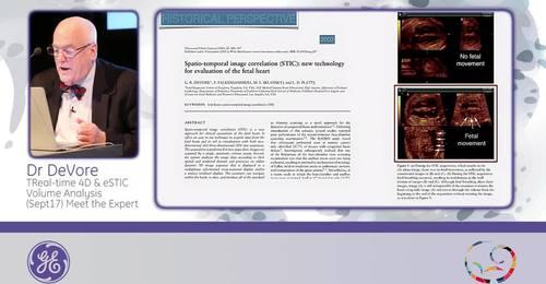 ISUOG 2015 - Dr. DeVore: Real-time 4D & eSTIC volume analysis