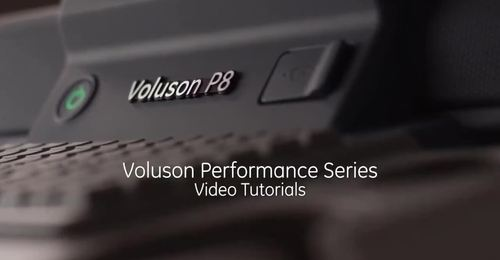 Voluson Performance Series - 2D Optimization