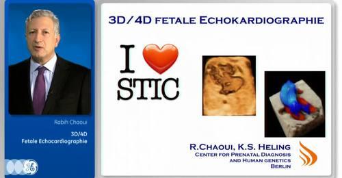 Dr. Chaoui: 3D/4D Fetal Echocardiography