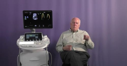 Voluson Fetal Heart - Why fetalHQ is valuable for Twin to Twin Transfusion Syndrome with Dr. DeVore