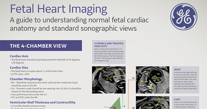Voluson Fetal Heart Poster - A guide to understanding normal fetal cardiac anatomy & standard sonographic views (2019)